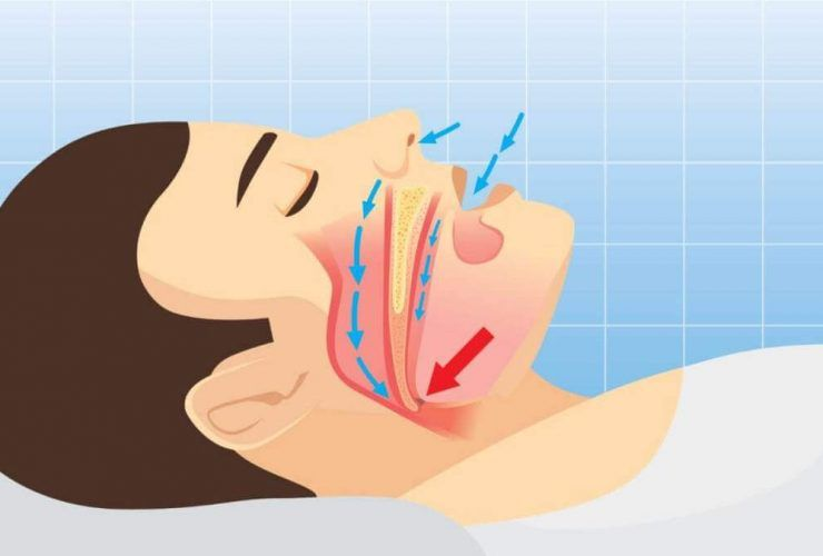 Fix Sleep Apnea