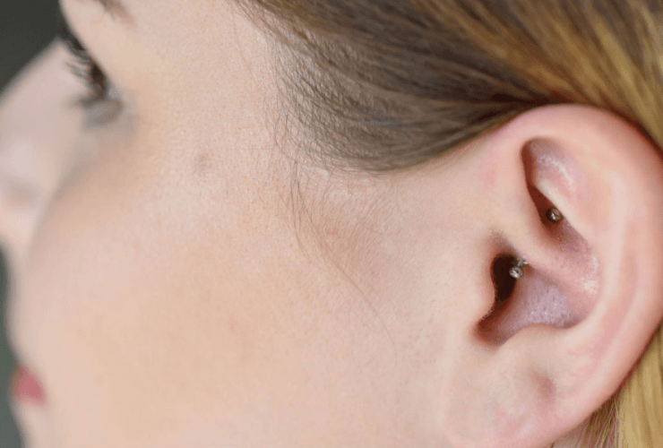 daith piercing for anxiety